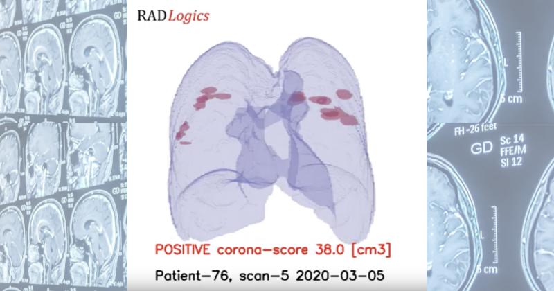Израильский стартап RADLogics разработал платформу мгновенной диагностики коронавируса